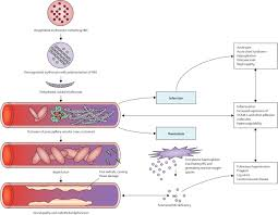 sickle cell disease the lancet figure 2 pathophysiology of sickle cell disease
