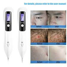 9 levels laser tattoo freckles freckle removal scan dark spots lcd monitor charge plasma pen anti aging beauty skin care tools