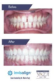 Dental Smile Design Albuquerque Pin On Invisalign Before After