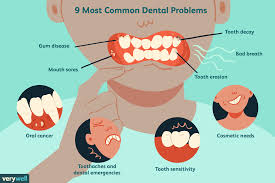 Class 1 Cavity Design The 9 Most Common Dental Problems