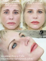 заживший перманентный макияж татуаж век и губ центр перманентного