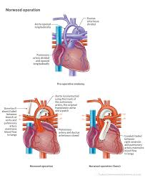 What is a shunt in the heart