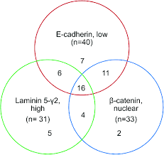 What Could Be Put Into The Center Section Of This Venn Diagram Emt Protein Distribution In Tumor Center And At The Invasive Front
