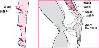 膝 の 上 が 痛い