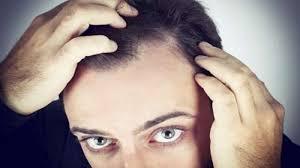 t rogaine work on receding hairline