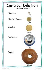Birth Dilation Chart Cervical Dilation Chart With Mase I Was A Cheerio Lets