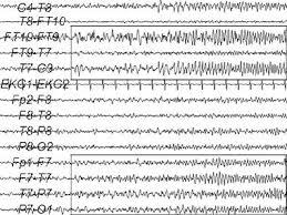 First Adult Seizure Background Etiology Epidemiology