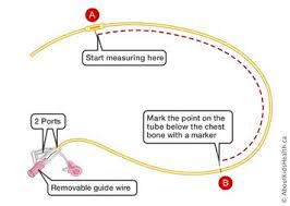 Nasogastric Ng Tube How To Insert Your Childs Ng Tube