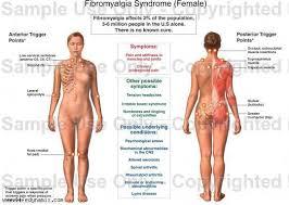 Fibromyalgia Chart Fibromyalgia Tender Point Chart For A Woman Crystia214