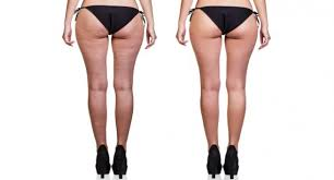 getting stubborn stretch marks and cellulite we have all tried our best to hide it especially in areas like thigh arms t area the hip area