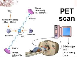 how a pet scan works positron emission tomography imaging of drug induced tumor