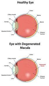 Eye Chart Test For Macular Degeneration Risk Factors For Age Related Macular Degeneration