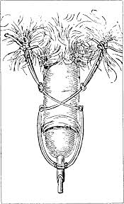Bladder Catheterisation Figure 7 From Catheters And Sounds The History Of Bladder