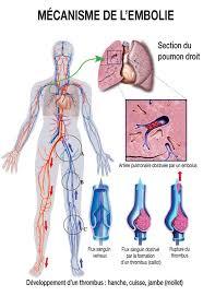 Thromboses veineuses profondes