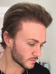 Hair Line Design Transplant Natural Hairline There Is Much More To It Than You Think