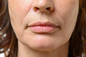 removing lines around your mouth