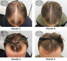 Male Pattern Baldness Stages Cool Design