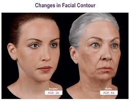 cheek contour fillers. as we age and lose facial volume, the contour of face changes, causing shadow patterns to develop, while youthful highlights fade. cheek fillers g