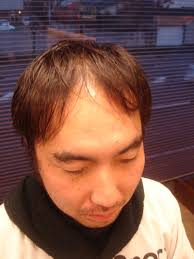 薄毛に似合う髪型薄毛 カット 最前線メンズヘアビューティの