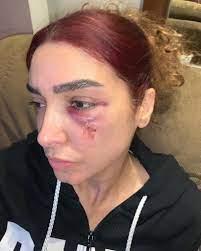 روجينا تغادر المستشفى بسبع غرز في الوجه وهذا أول تعليق