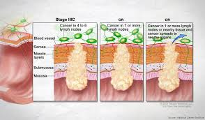 Bowel Cancer Staging Size Position Spread