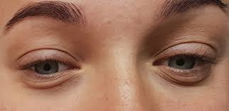 """Bags Under Eyes? These Are Your Best Bets for """"Eye Bag"""" Treatment -  University Health News"""