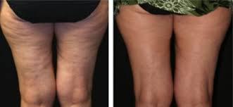 Use a circular, upward motion to improve circulation. Coffee Scrub For Cellulite Does It Work Fashionbustle