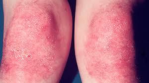 Dermatomyositis: Causes, Symptoms, and Treatment