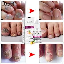 aliexpress ginger antibacterial nail treatment onychomycosis paronychia anti fungal nail infection toe nail fungus treatment essential oil from