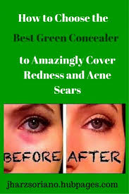 green concealers do wonders in hiding your dark circles and redness