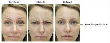Wrinkle treatment injections