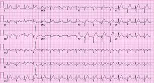 St Elevation Myocardial Infarction Images Bmj Best Practice