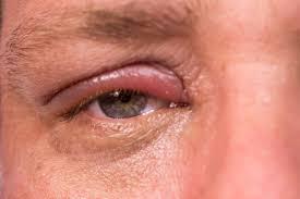 Rood dik ooglid