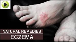 Skin Care - Eczema - Natural Ayurvedic Home Remedies - YouTube