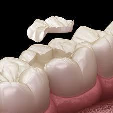 Dental Inlay Porcelain Inlays Zebra Dental Windermere Dentist