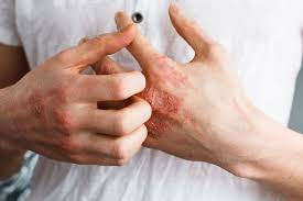 5 Unusual Causes of Eczema & How To Get Relief Naturally   FOOD MATTERS®