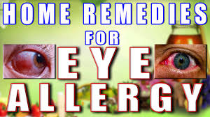 home remes for eye allergy ii