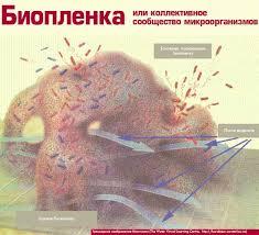 medicus amicus Биопленка или коллективное сообщество микроорганизмов Биопленка или коллективное сообщество микроорганизмов