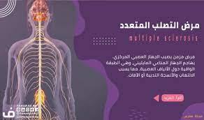 مرض التصلب المتعدد : الأسباب، الأعراض، والعلاج