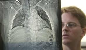 ball bearings bomb. body of evidence: trauma surgeon david read with an x-ray film showing ball bearings bomb