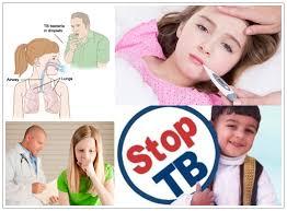 MENGENALI TBC PADA ANAK