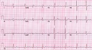 Telemetry Heart Rate Chart Atrial Fibrillation