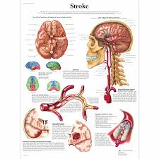 Anatomy Of The Heart Chart Stroke Chart