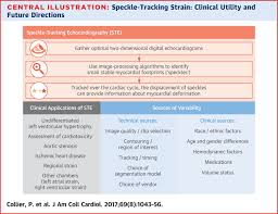 A Test In Context Myocardial Strain Measured By Speckle Tracking
