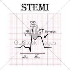 Ecg Of St Elevation Myocardial Infarction Stemi And D Gl
