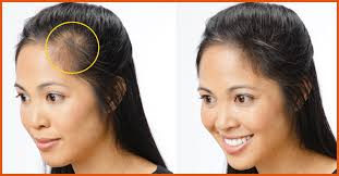 Male Pattern Baldness In Women Inspiration Top 48 Home Remedies To Cure Baldness Effectively