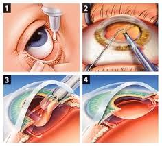Behandeling cataract