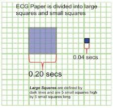 38 Best Learning Ecg Interpretation Images Nurses Nursing Notes