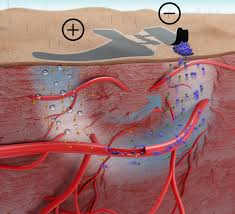 Tracking Blood Sugar Levels Skin Like Biosensor Offers Needle Free Blood Sugar Monitoring Ieee