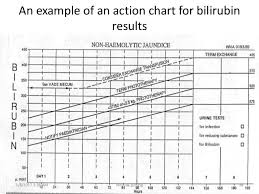 Bilirubin Levels Chart Uk Physiological Jaundice